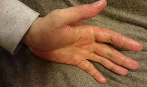 大人がなると大変!子供がよくかかる手足口病になった場合の対策のサムネイル画像
